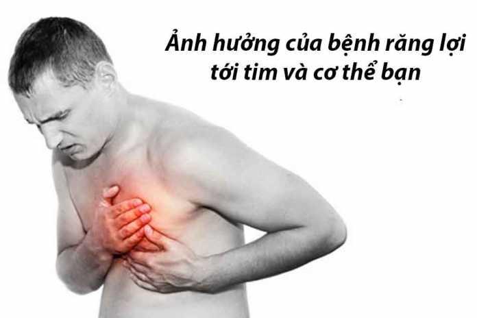 Ảnh hưởng của bệnh răng lợi tới tim và cơ thể bạn
