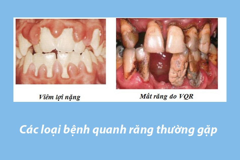 Các loại bệnh quanh răng thường gặp