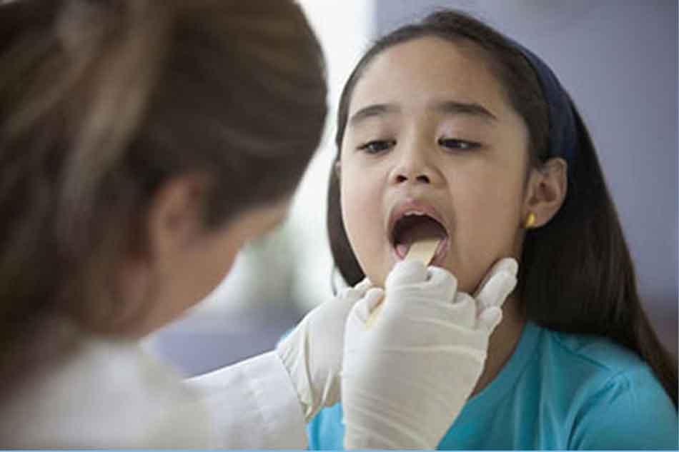 Chẩn đoán sâu răng ở trẻ em