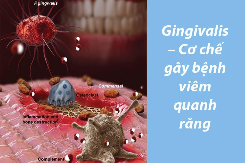 Gingivalis – Cơ chế gây bệnh viêm quanh răng