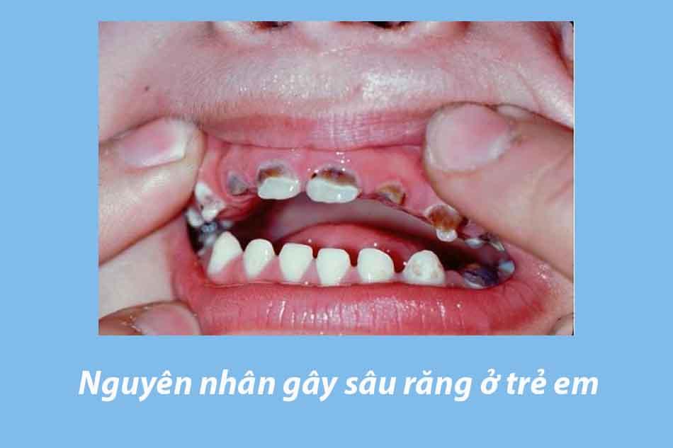Nguyên nhân gây sâu răng ở trẻ em