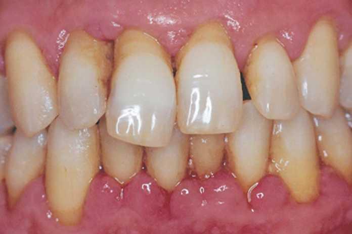 Nguyên nhân gây bệnh quanh răng