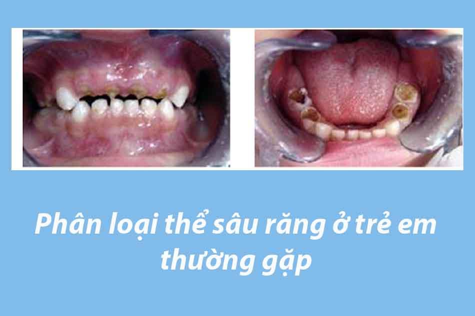 Phân loại thể sâu răng ở trẻ em thường gặp