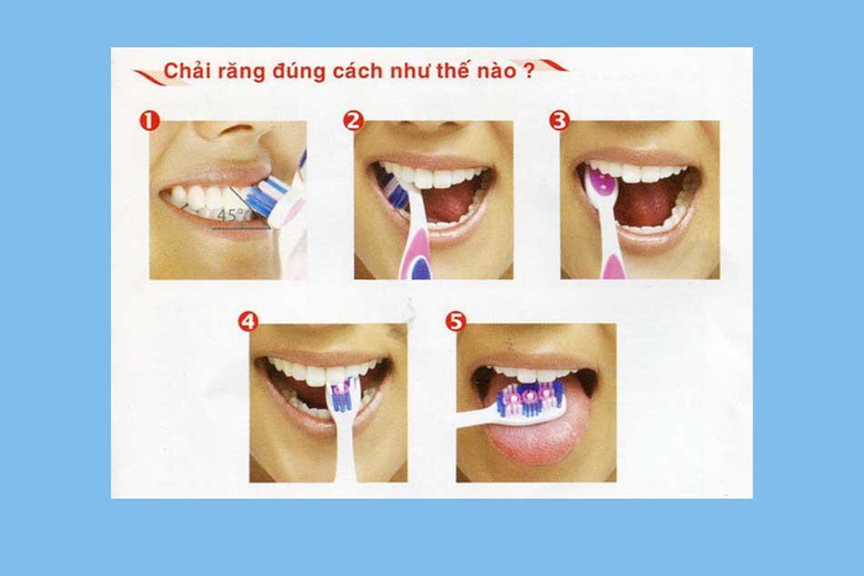 Chữa sâu răng giai đoạn sớm