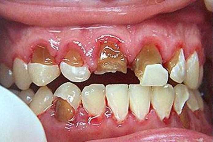 Kháng thể IgY và bệnh răng lợi