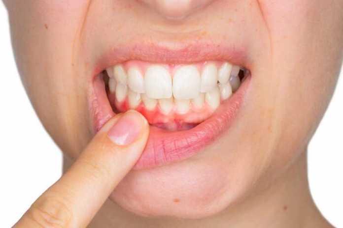 Nghiên cứu tác dụng Ovalgen PG trên bệnh quanh răng