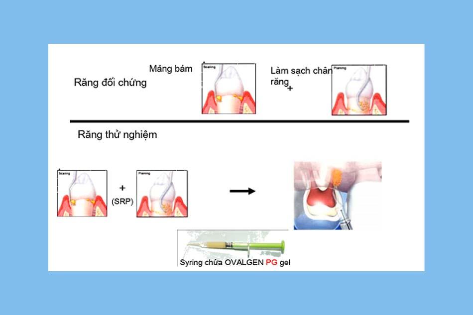 Mô tả phương pháp tiến hành thử nghiệm IgY với bệnh viêm chân răng