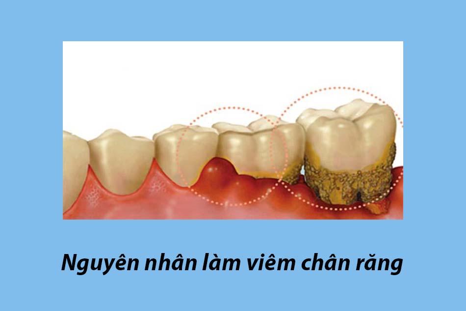 Nguyên nhân làm viêm chân răng