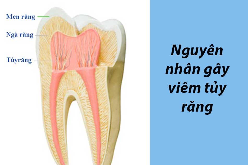 Nguyên nhân gây viêm tủy răng