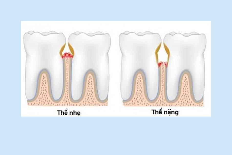 Xỉa răng có thể gây viêm lợi (nướu), hôi miệng