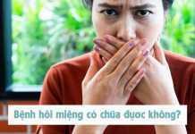 Bệnh hôi miệng có chữa được không?