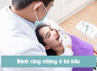 Các chữa bệnh răng lởi bà bầu an toàn với thai nhi