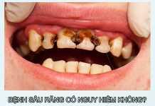 Bệnh sâu răng có nguy hiểm không?