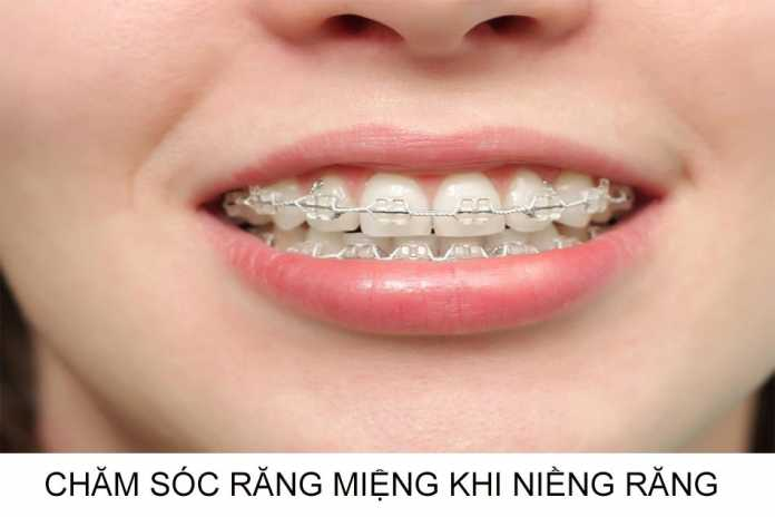 Chăm sóc răng miệng trong thời kì niềng răng