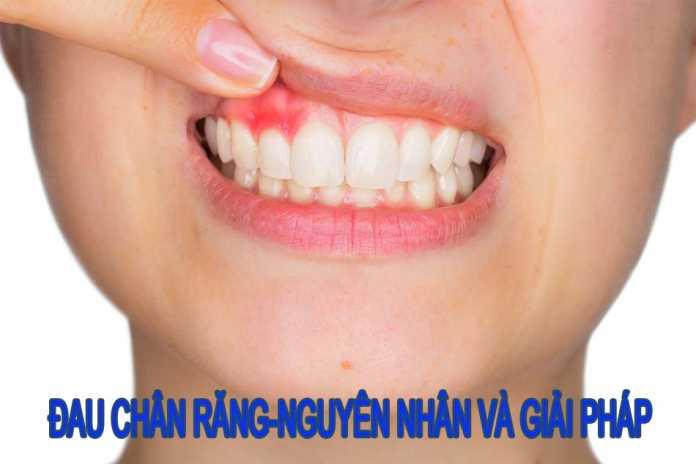 Đau chân răng