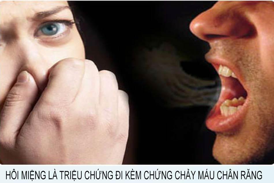 Hôi miệng là triệu chứng đi kèm chứng chảy máu chân răng