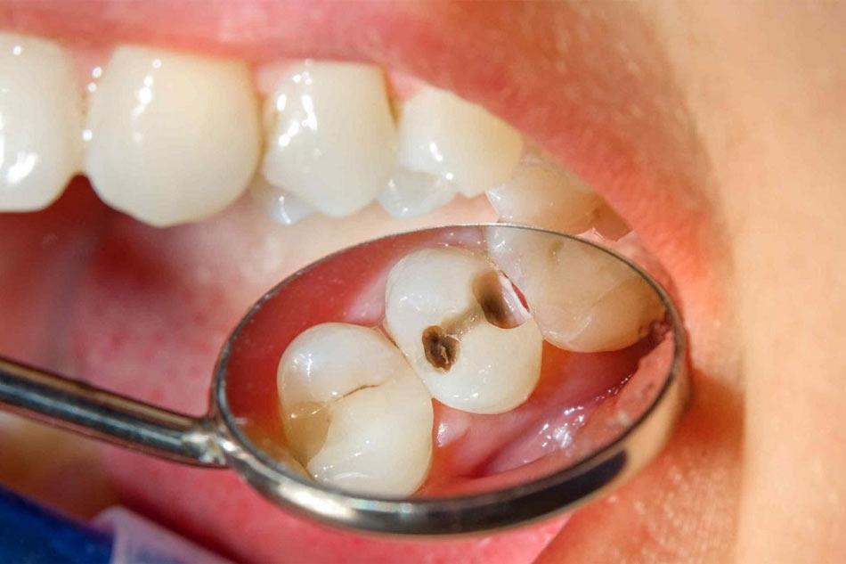 Khi vết sâu răng đã lớn