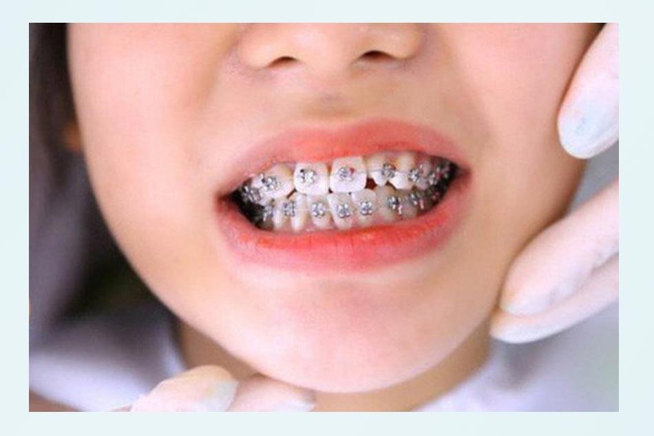 Lưu ý các biện pháp vệ sinh tăng cường hỗ trợ răng miệng