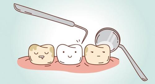 Mảng bám răng là nguyên nhân trực tiếp dẫn đến các bệnh về răng lợi.