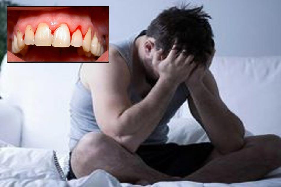 Có mối liên hệ giữa sức khỏe Răng Lợi với khả năng tình dục của Nam giới