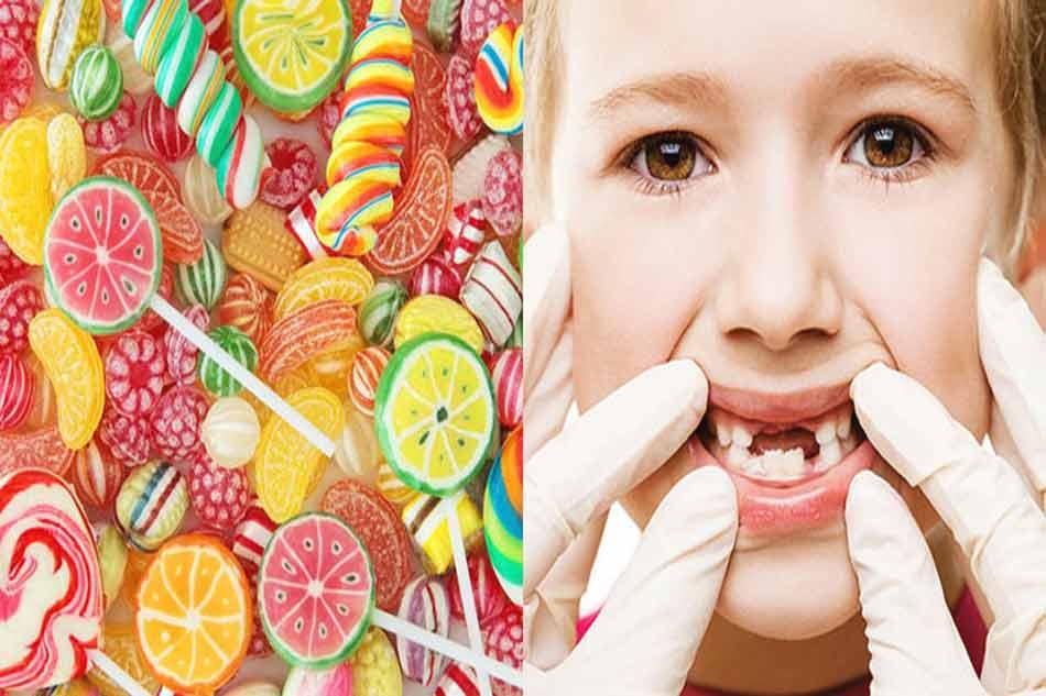 Nguyên nhân khiến trẻ bị sâu răng hàm