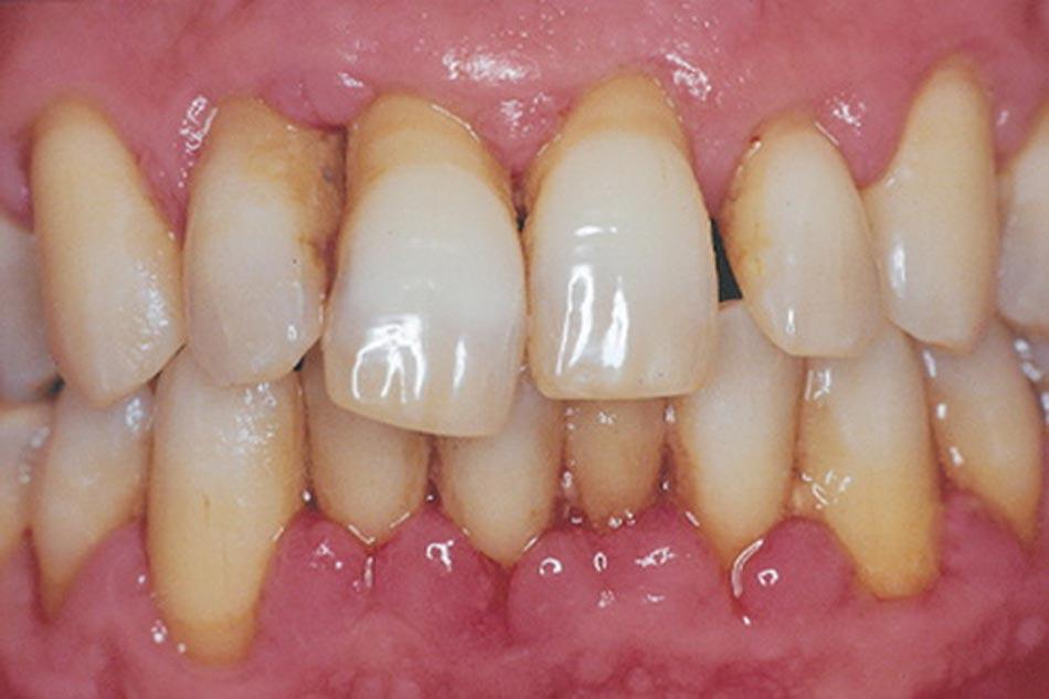 Đau chân răng-truy nguyên nhân tìm giải pháp