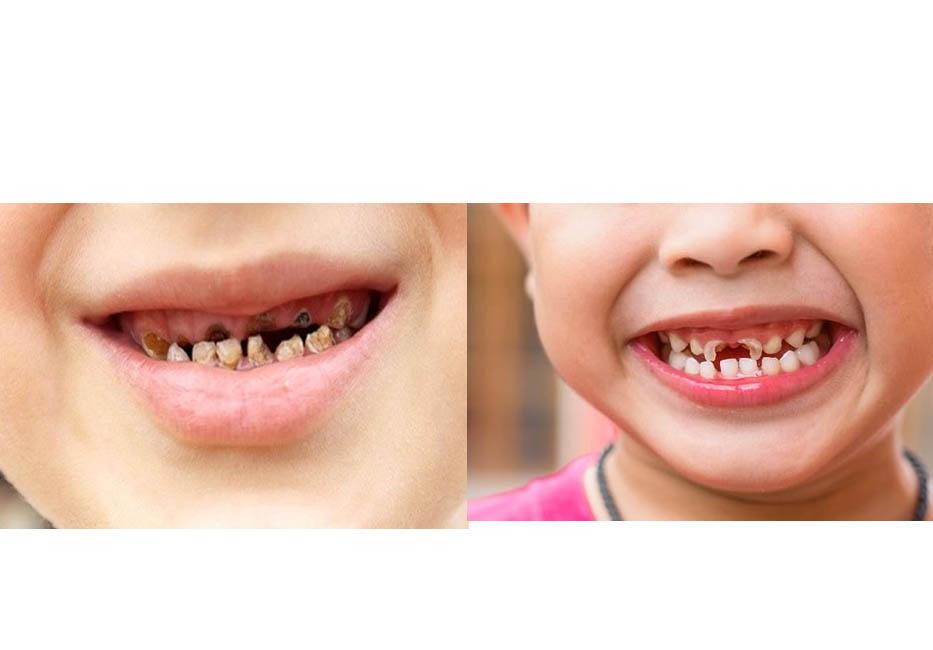 Sâu răng thường xảy ra ở cả răng Hàm và răng Cửa