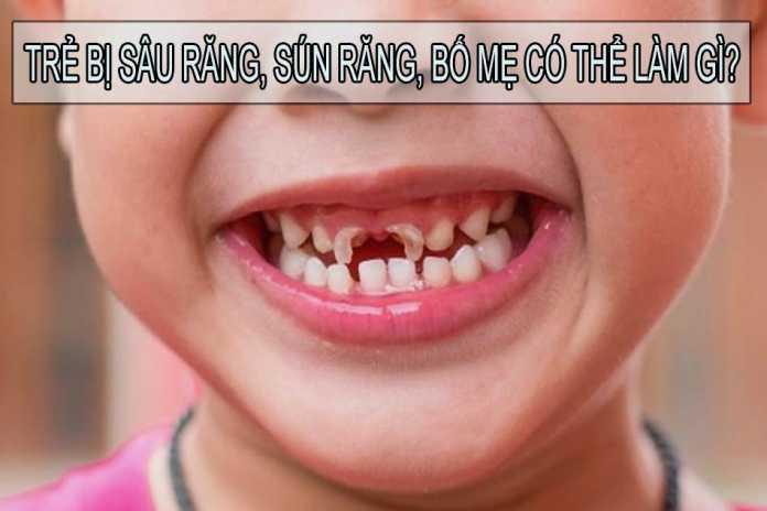 Trẻ bị sâu răng, sún răng, bố mẹ có thể làm gì?