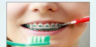 Vệ sinh răng miệng khi mang mắc cài chỉnh nha