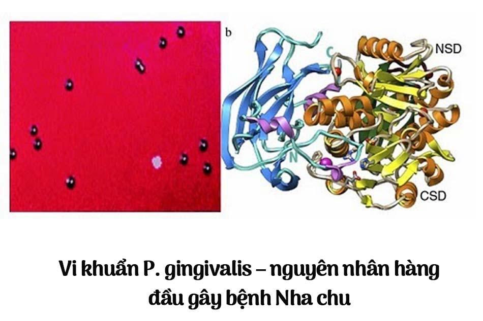 Vi khuẩn P. gingivalis – nguyên nhân hàng đầu gây bệnh Nha chu