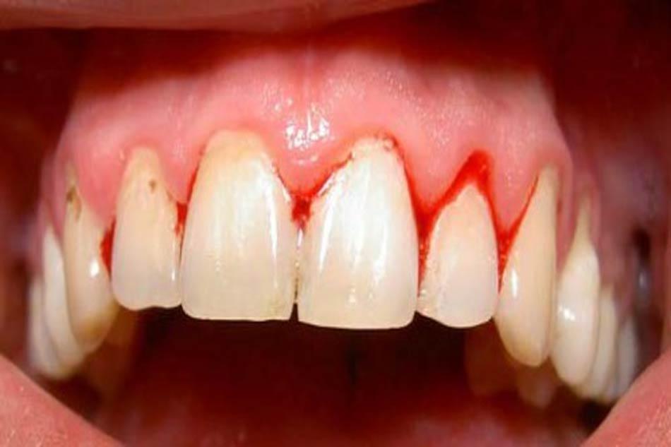 Viêm chân răng uống thuốc gì? (Ảnh minh họa)