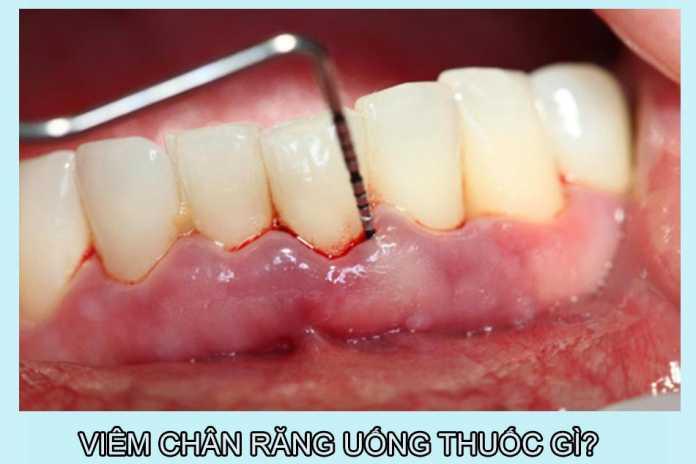 Viêm chân răng uống thuốc gì?