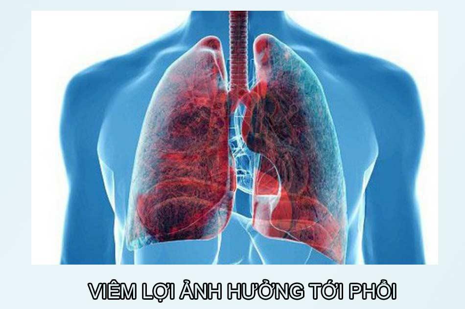 Viêm lợi ảnh hưởng tới phổi. (Ảnh minh họa)