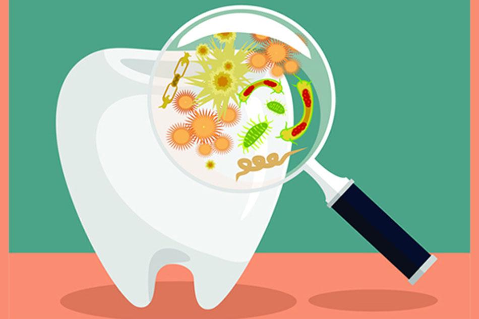 Xác định được thủ phạm gây bênh răng lợi 2