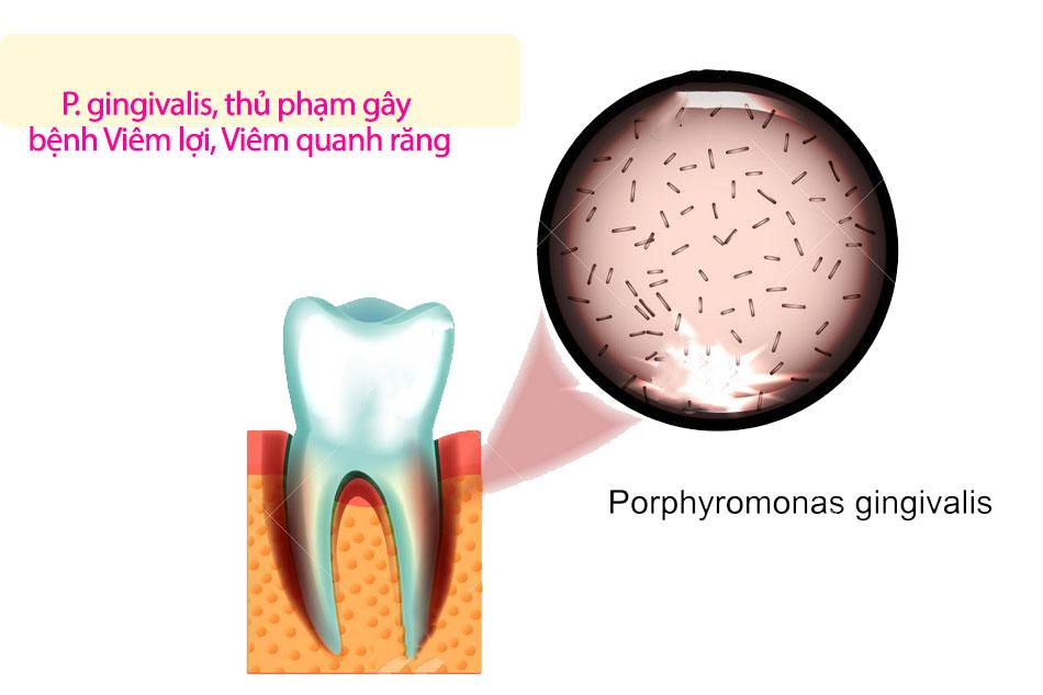Xác định được thủ phạm gây bệnh răng lợi 3