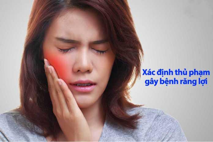 Xác định được thủ phạm gây ra bệnh răng lợi