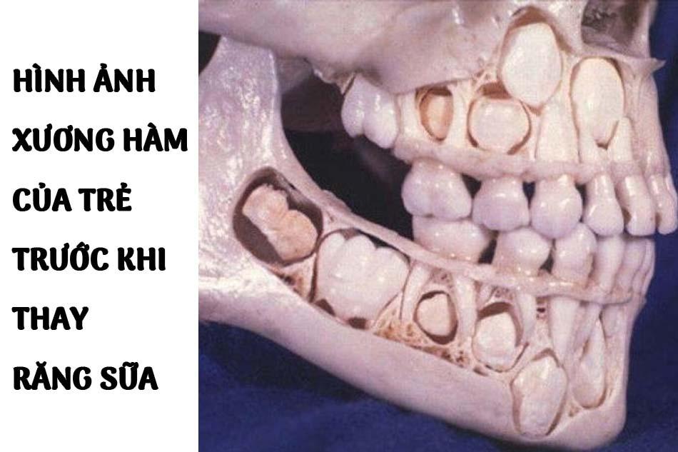 Hình ảnh xương hàm của trẻ trước khi thay răng sữa: Dưới mỗi răng sữa là các mầm răng vĩnh viễn