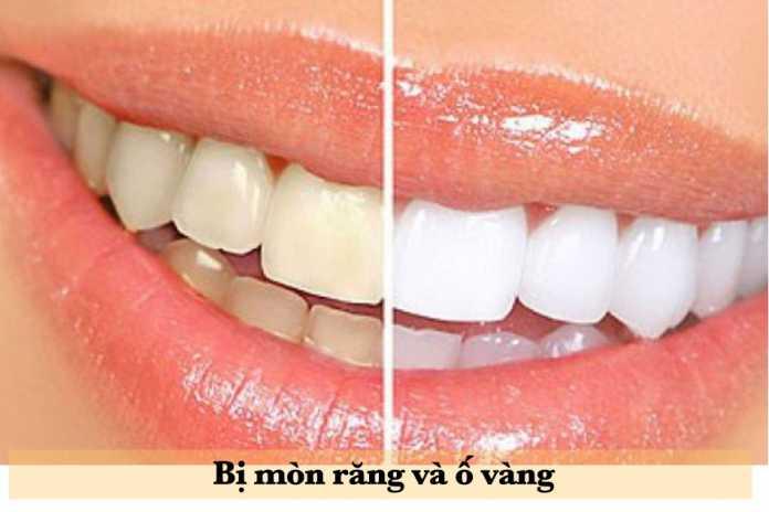 Bị mòn chiếc răng và ố vàng có dùng được Kháng thể IgY không?