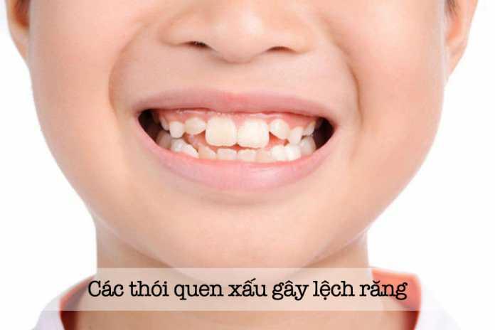 Các thói quen xấu gây lệch răng