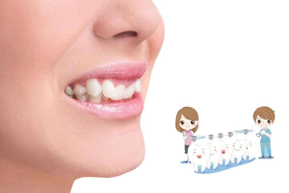 Những lệch lạc răng nào thường gặp ở trẻ nhất