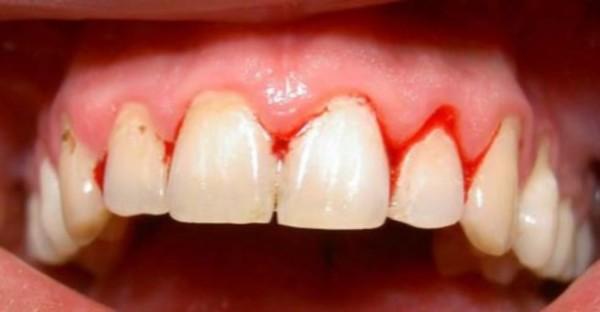Đau chân răng là một trong những bệnh nguy hiểm