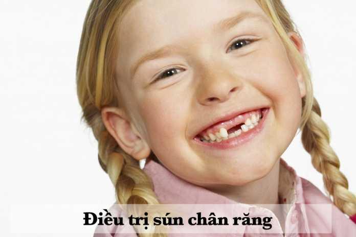 Điều trị sún chân răng
