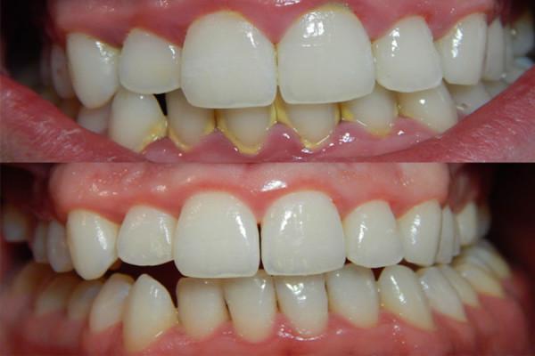 Lấy cao răng là việc cần làm đầu tiên khi gặp bất kỳ vấn đề gì về răng