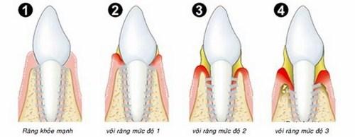 Mảng bám răng không chỉ gây mất thẩm mỹ mà còn dẫn đến sâu răng, viêm lợi, hôi miệng…
