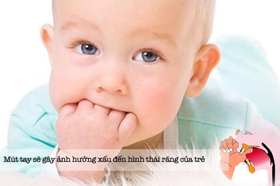 Các thói quen thường thấy gây lệch răng ở trẻ