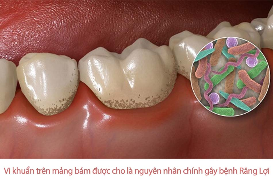 Xác định được thủ phạm gây bệnh răng lợi