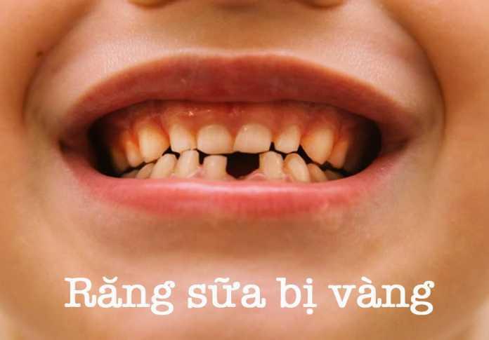 Răng sữa tự nhiên của trẻ có màu trắng ngà, vì vậy nếu răng sữa bị ố vàng cha mẹ cần đặc biệt lưu tâm tìm ra nguyên nhân, bảo vệ sức khoẻ răng miệng cho trẻ.