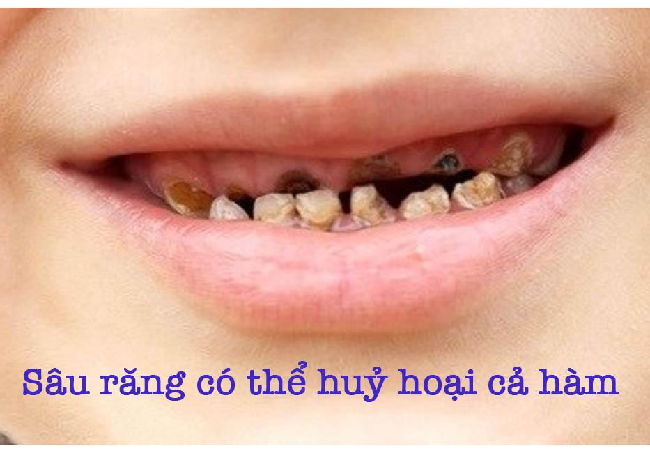 Sâu răng có thể hủy hoại cả hàm răng