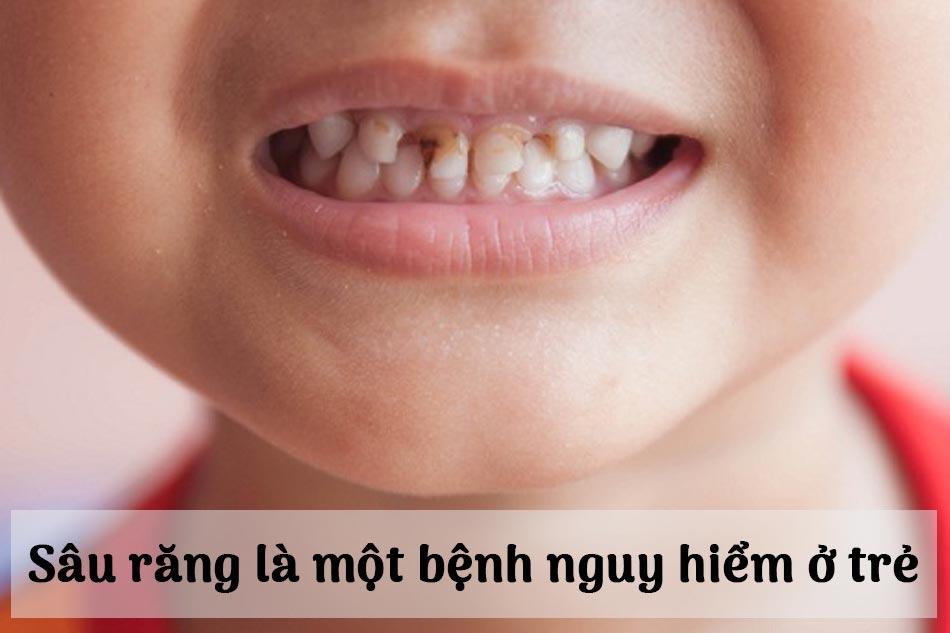 Sâu răng là một bệnh nguy hiểm ở trẻ