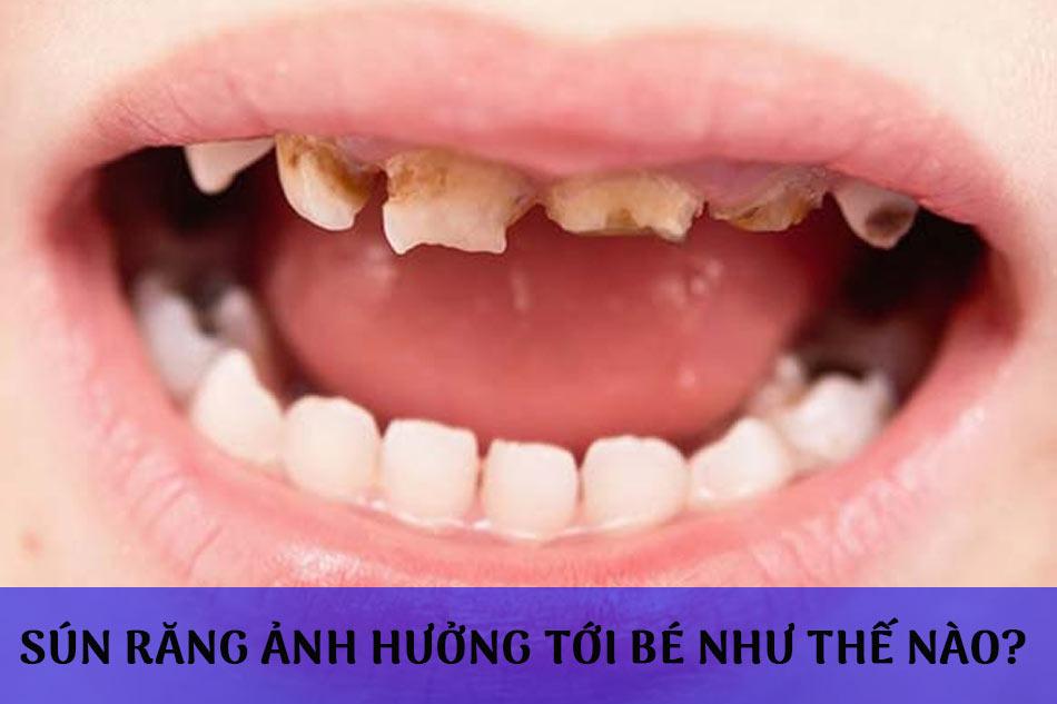 Sún răng ảnh hưởng tới bé như thế nào?